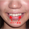 Beautiful Teeth Are Crooked in Japan